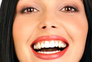 Blanqueamiento dental externo