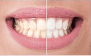 antes y despues dientes blancos y amarillos