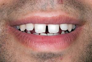 carillas_dentales_caso2