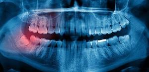 Extraccion dental dolor