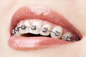Ortodoncia metalica clinica dental