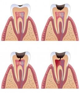 Caries progreso del diente