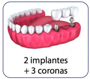 implantes dentales multiples