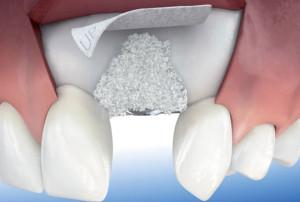 regeneracion osea implantes dentales