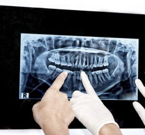Valoracion para implantes dentales