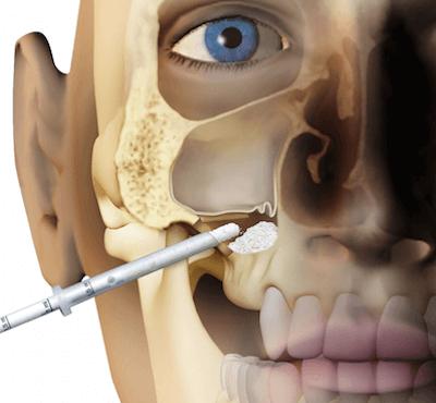 Elevación de seno maxilar y regeneración de hueso - Clínica dentalmedics – Dr. Ferrer