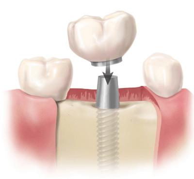 4 claves para comparar el precio final de un implante dental - Clínica dentalmedics – Dr. Ferrer