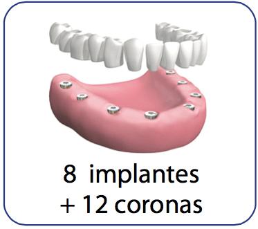protesis dental con implantes y coronas de porcelana