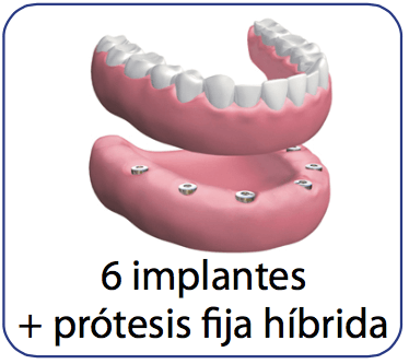 protesis dental con implantes hibrida