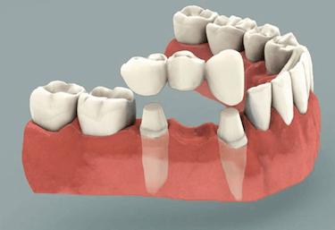Implante dental o Puente fijo solucion 2 implantes