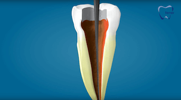 endodoncia multirradicular limas