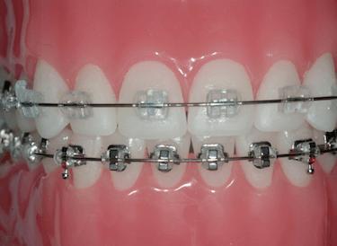 brackets de zafiro y metalicos