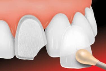 precio de las carillas dentales en madrid