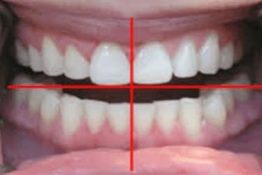 precio de un curetaje dental por cuadrante