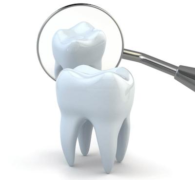 ¿Cuál es el precio de un curetaje dental por cuadrante? - Clínica dentalmedics – Dr. Ferrer