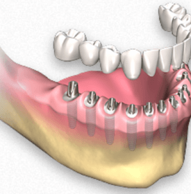 Protesis dental fija con implantes porcelana