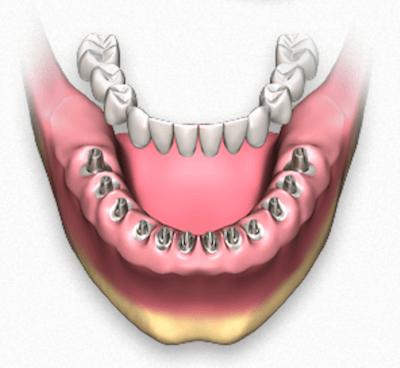 Prótesis dental fija con implantes dentales - Clínica dentalmedics – Dr. Ferrer