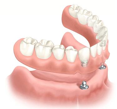 protesis dental removible sobre implantes dentales