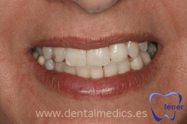 Caso de implantes dentales el despues