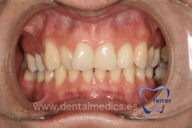 Caso de ortodoncia ortodoncia antes Dr Ferrer