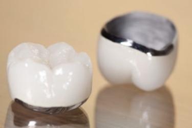 corona metal sobre diente