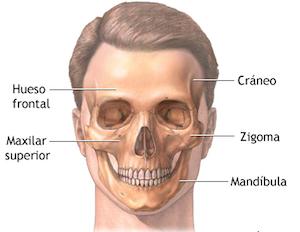 injerto hueso maxilar