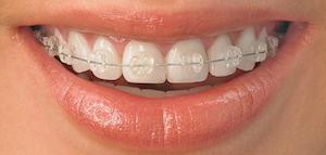 Ortodoncia dental y brackets efectivos