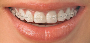 ortodoncia estetica