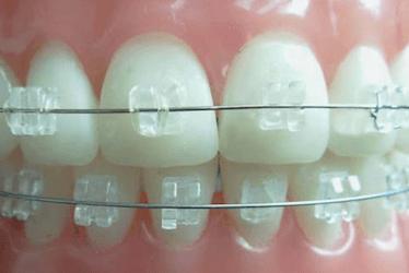 ortodoncia estetica zafiro