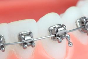 ortodoncia autoligable
