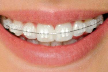 ortodoncia blanca