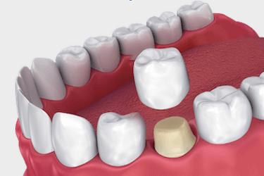clases coronas dentales