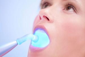 Blanqueamiento denta con luz led