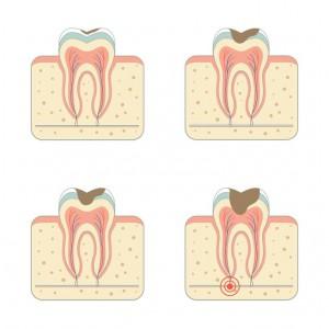 que es endodoncia