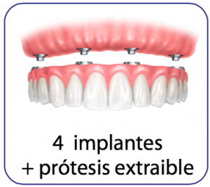 implantes dentales sobredentadura