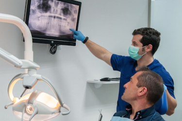 implantes dentales valoracion