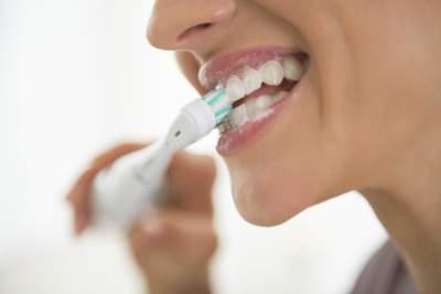 cepillado durante el blanqueamiento dental