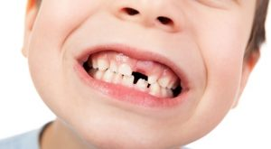 dentista especialista en niños