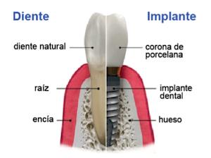 Implante dentario y corona