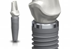 implante dentario osteointegrado superficie