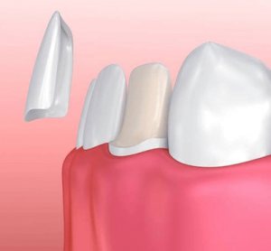 Carilla solución estético dental