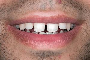 antes carillas dentales