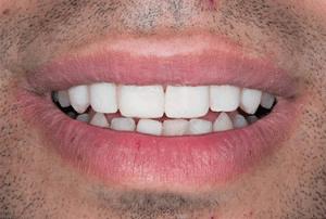 después carillas dentales