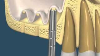 elevación de seno maxilar y regeneración de hueso