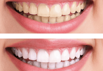 Cosmetica dental Blanqueamiento