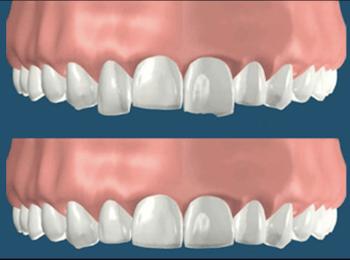 Corregir dientes irregulares