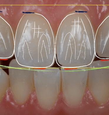 Especialistas en Estética dental en Madrid - Clínica dental Dr. Ferrer   Madrid