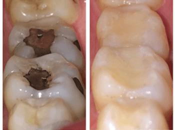 Empastes de composite y amalgama