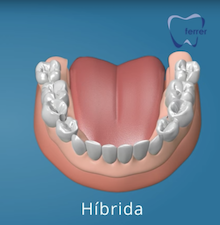 Colocación protesis dental hibrida