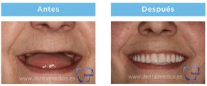 antes y después prótesis dental híbrida